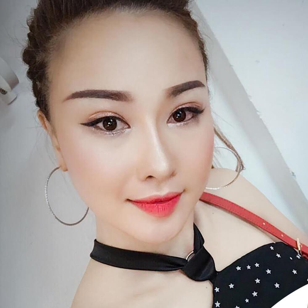 Người mẫu Kim Thoa tự tin tỏa sáng sau phẫu thuật thẩm mỹ