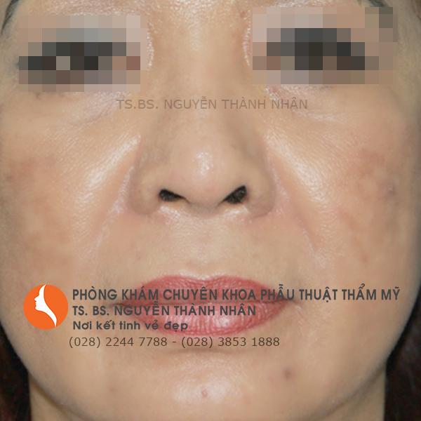 Ca 2: Trước khi phẫu thuật mũi