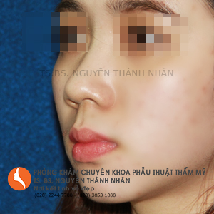 Ca 4: Trước khi phẫu thuật mũi