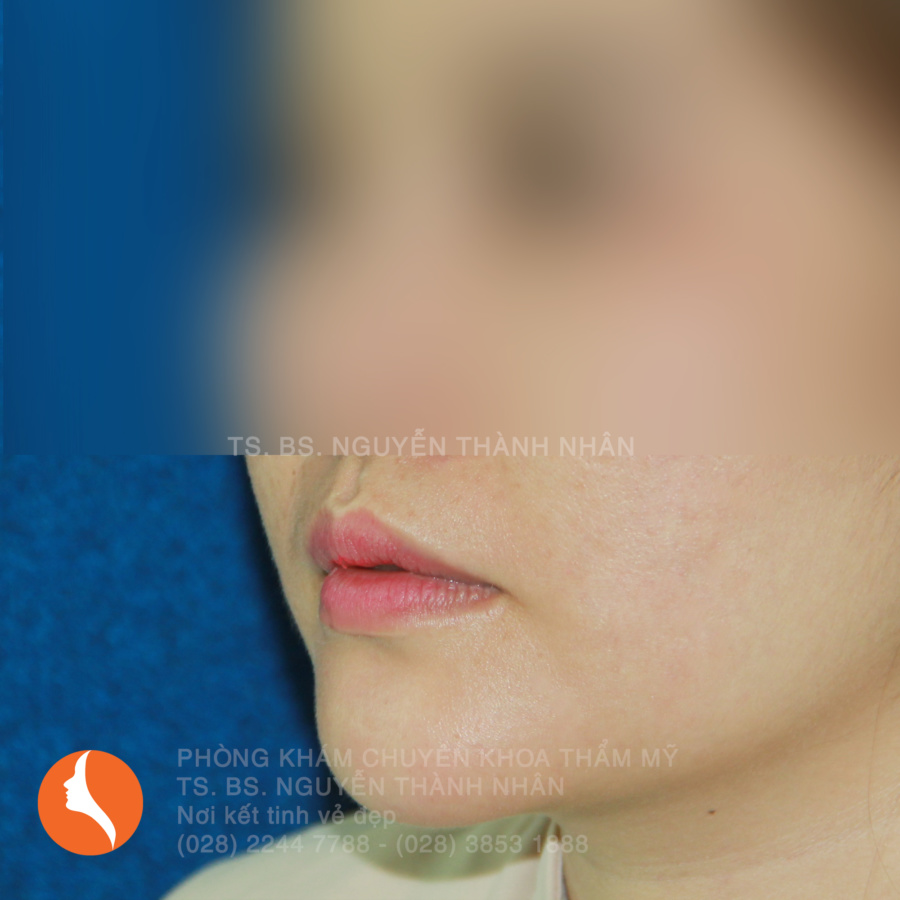 Ca 5: Sau khi phẫu thuật cằm