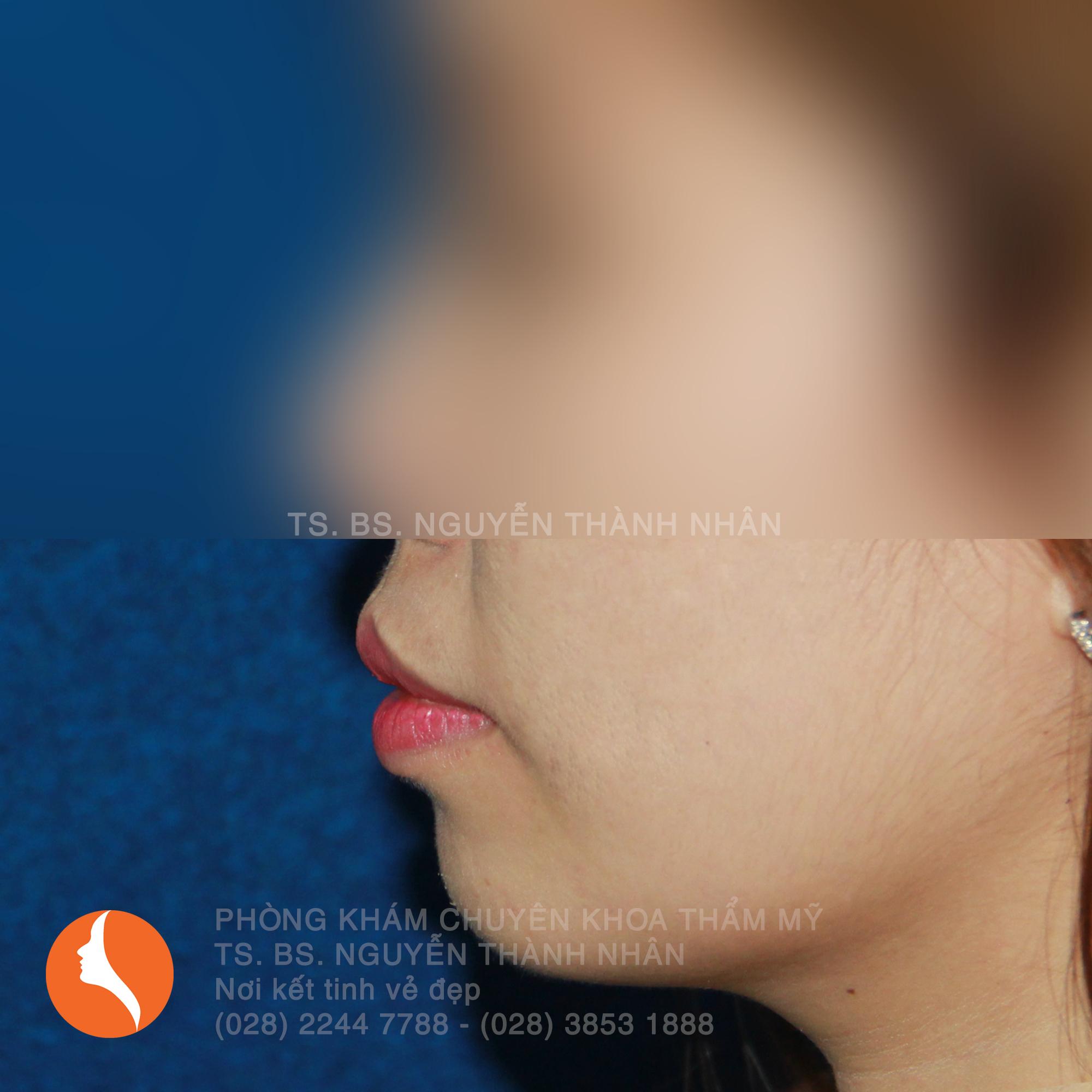 Ca 5: Trước khi phẫu thuật cằm