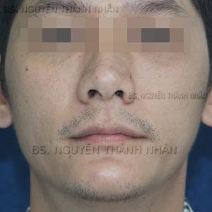 Ca 1: Sau khi phẫu thuật mũi