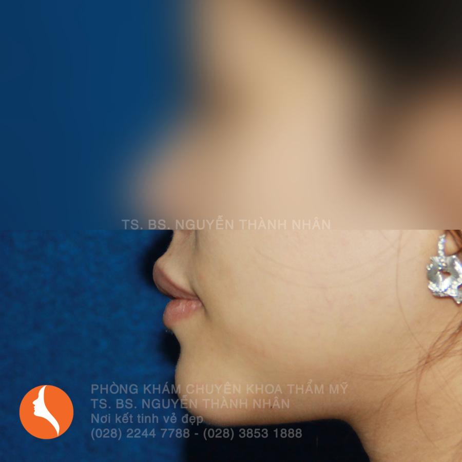 Ca 6: Sau khi phẫu thuật cằm