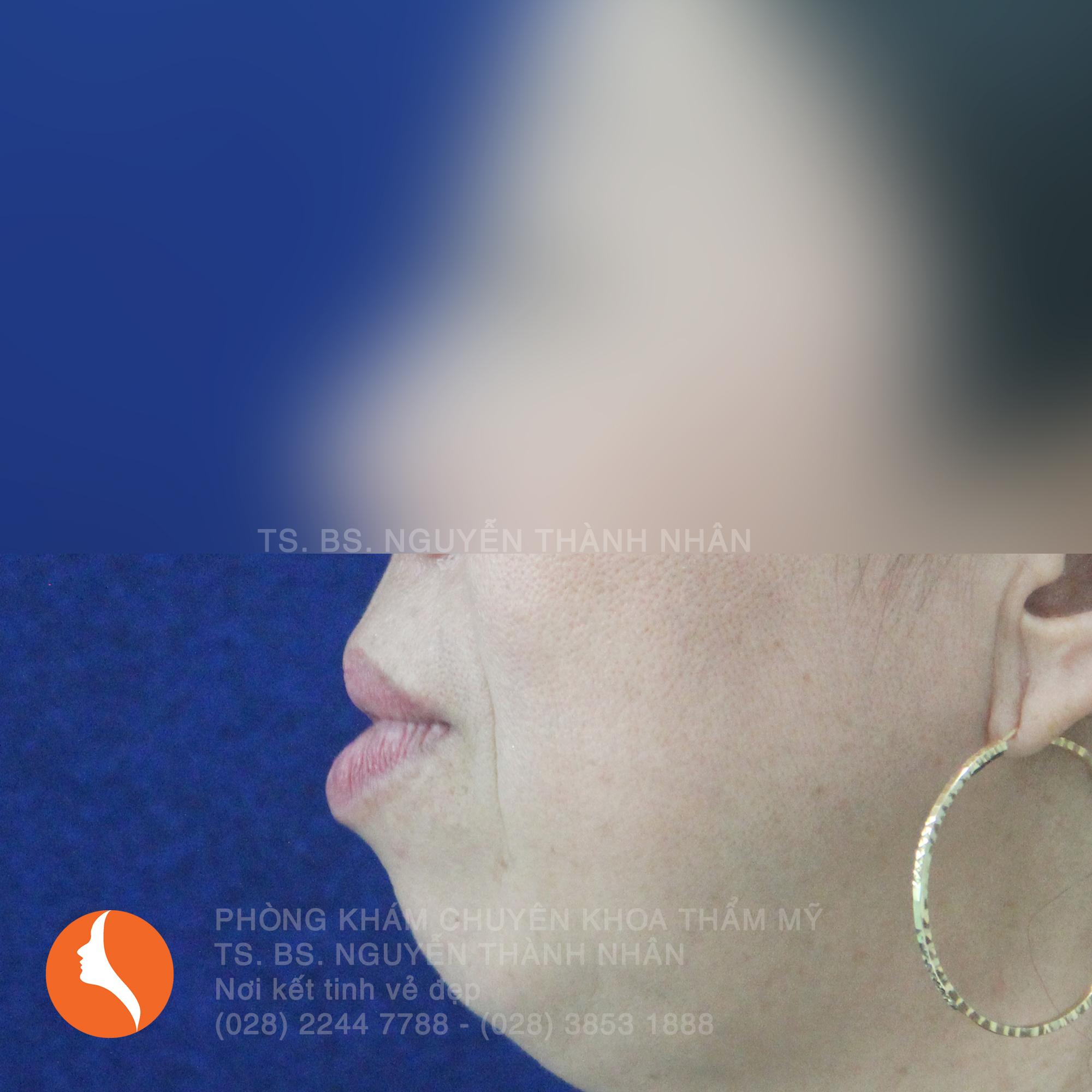 Ca 7: Trước khi phẫu thuật cằm