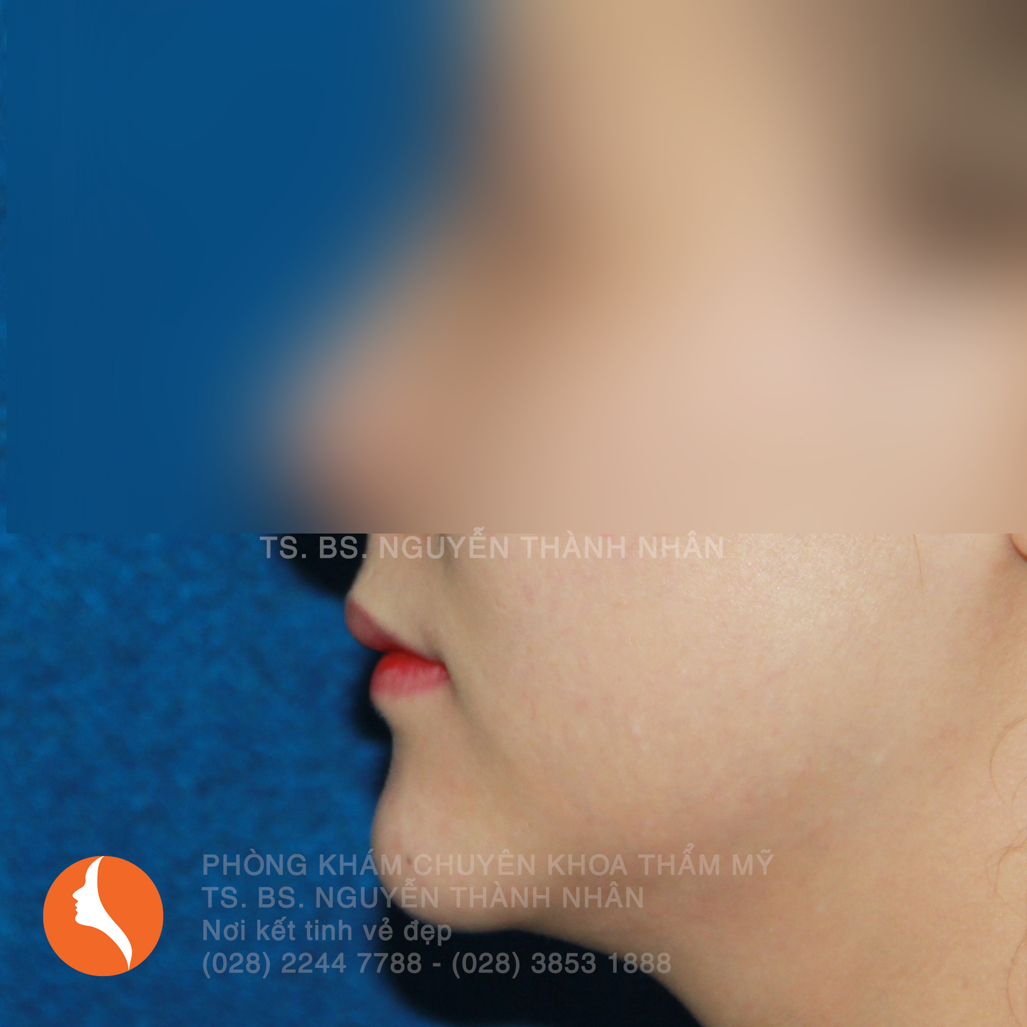 Ca 1: Sau khi phẫu thuật cằm