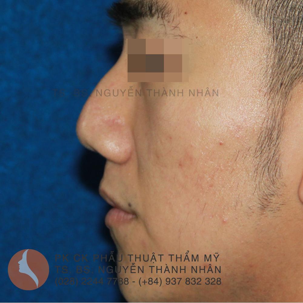 Ca 3: Trước khi phẫu thuật mũi