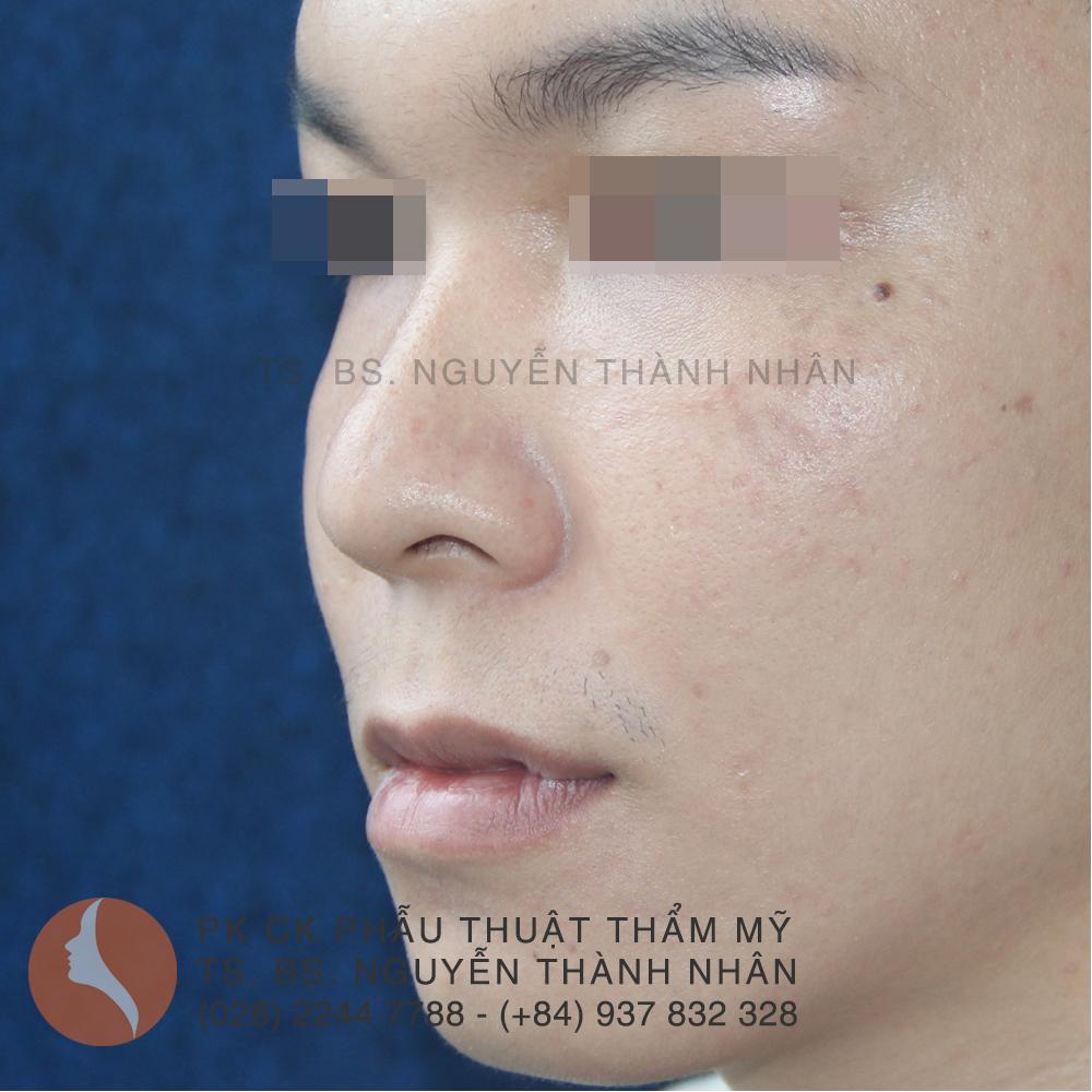 Ca 6: Trước khi phẫu thuật mũi