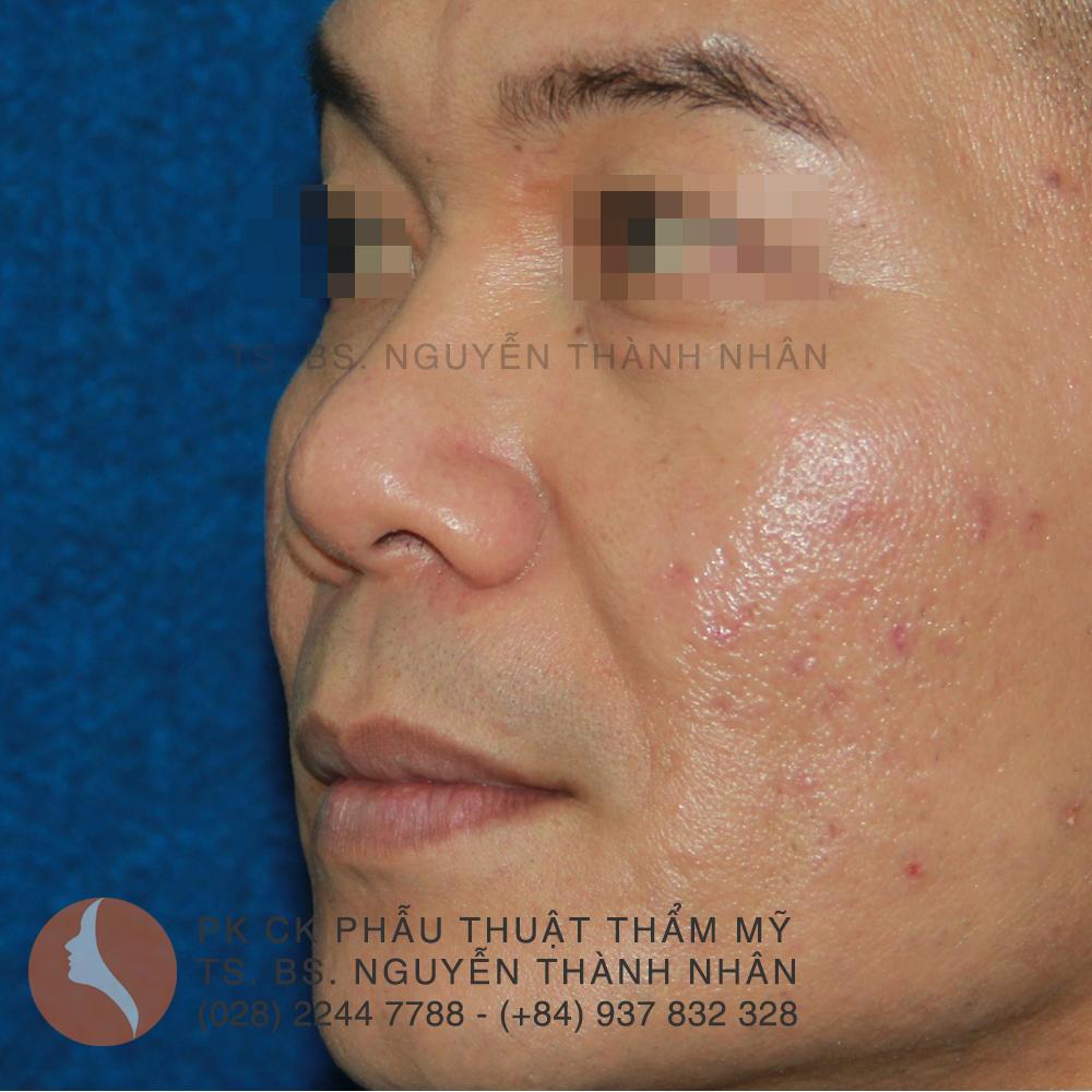 Ca 8: Trước khi phẫu thuật mũi