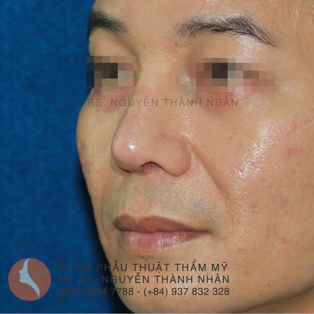 Ca 8: Sau khi phẫu thuật mũi