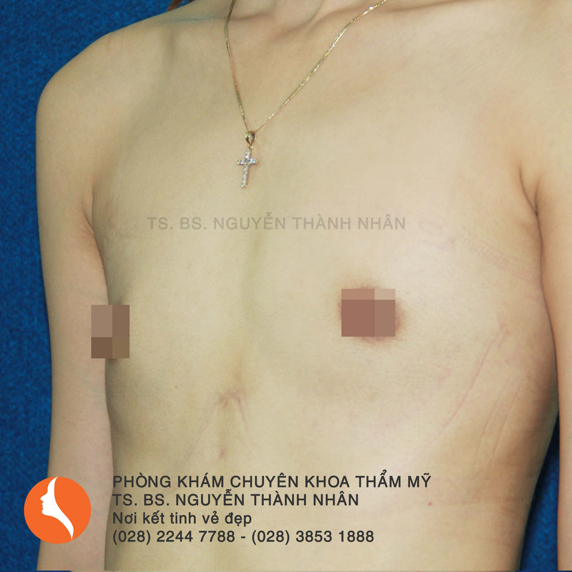 Ca 1: Trước phẫu thuật nâng ngực
