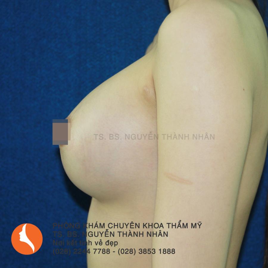 Ca 2: Sau phẫu thuật nâng ngực