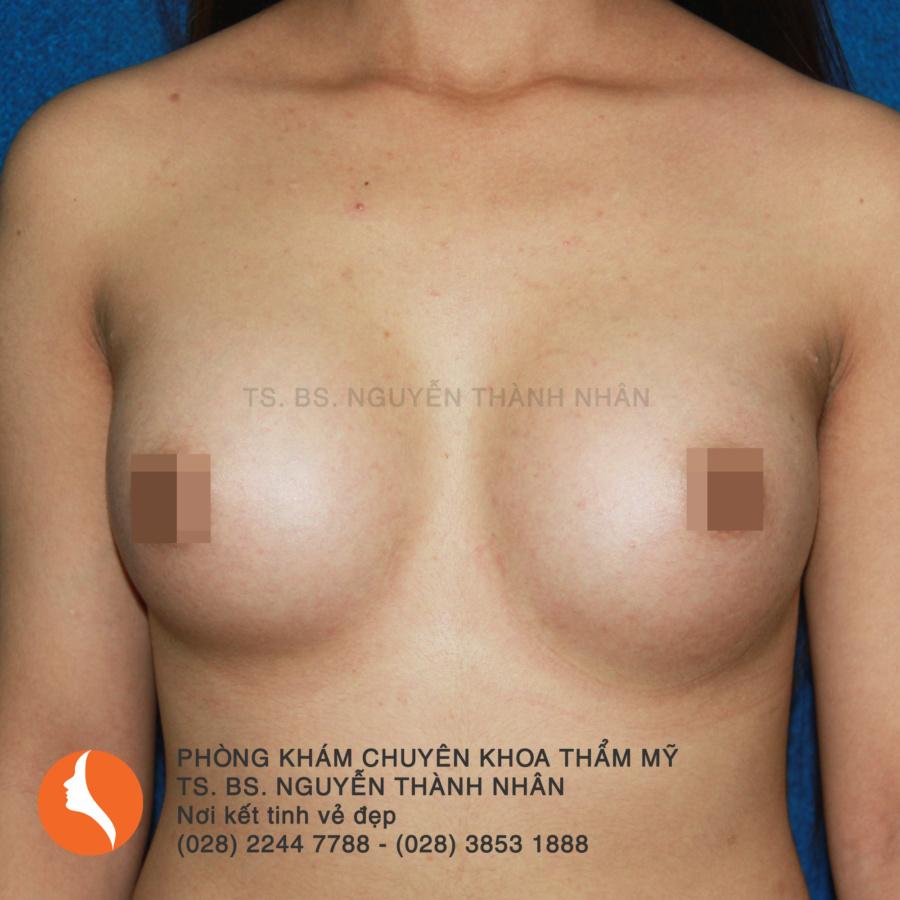 Ca 3: Sau phẫu thuật nâng ngực