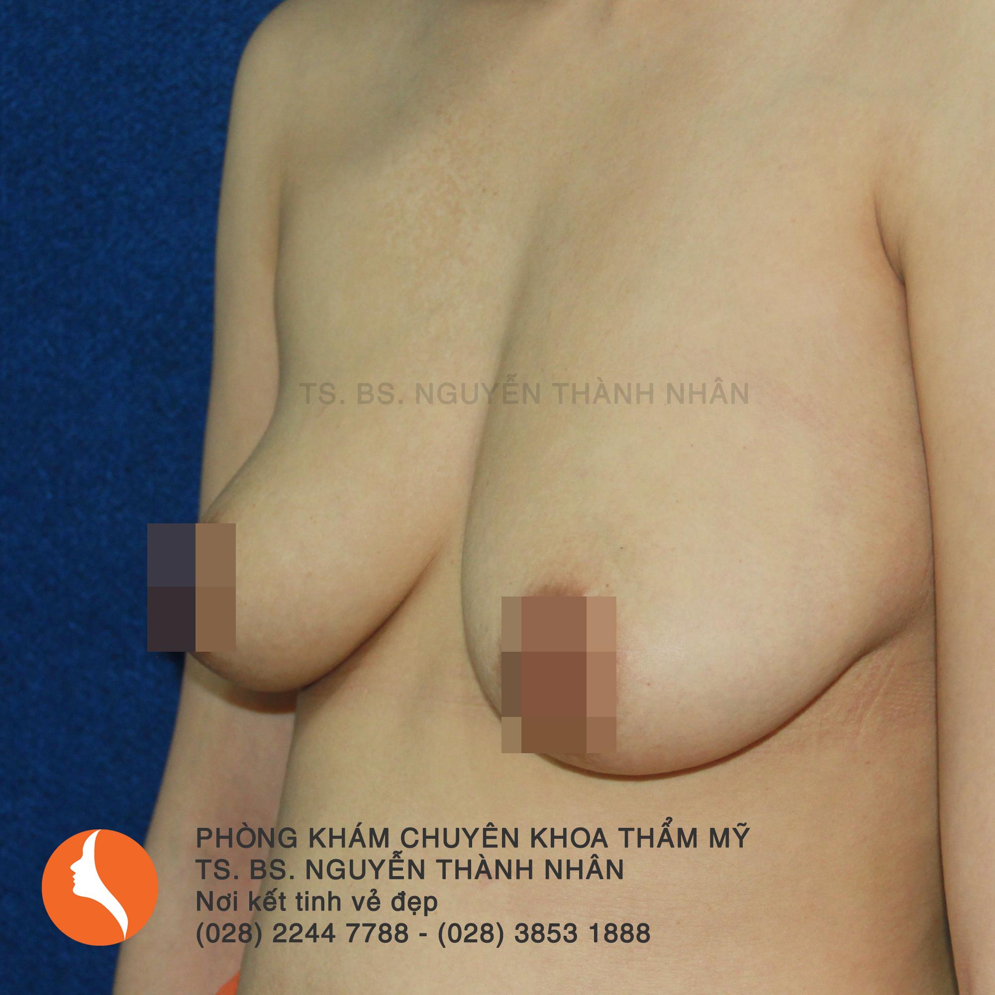 Ca 5: Trước phẫu thuật nâng ngực