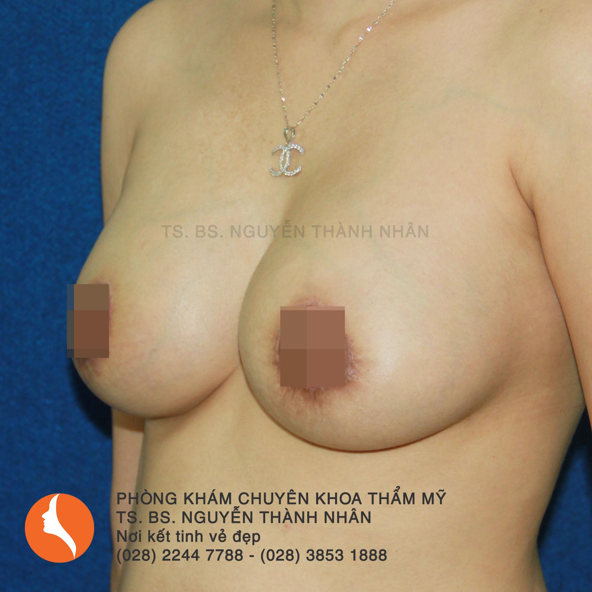 Ca 5: Sau phẫu thuật nâng ngực