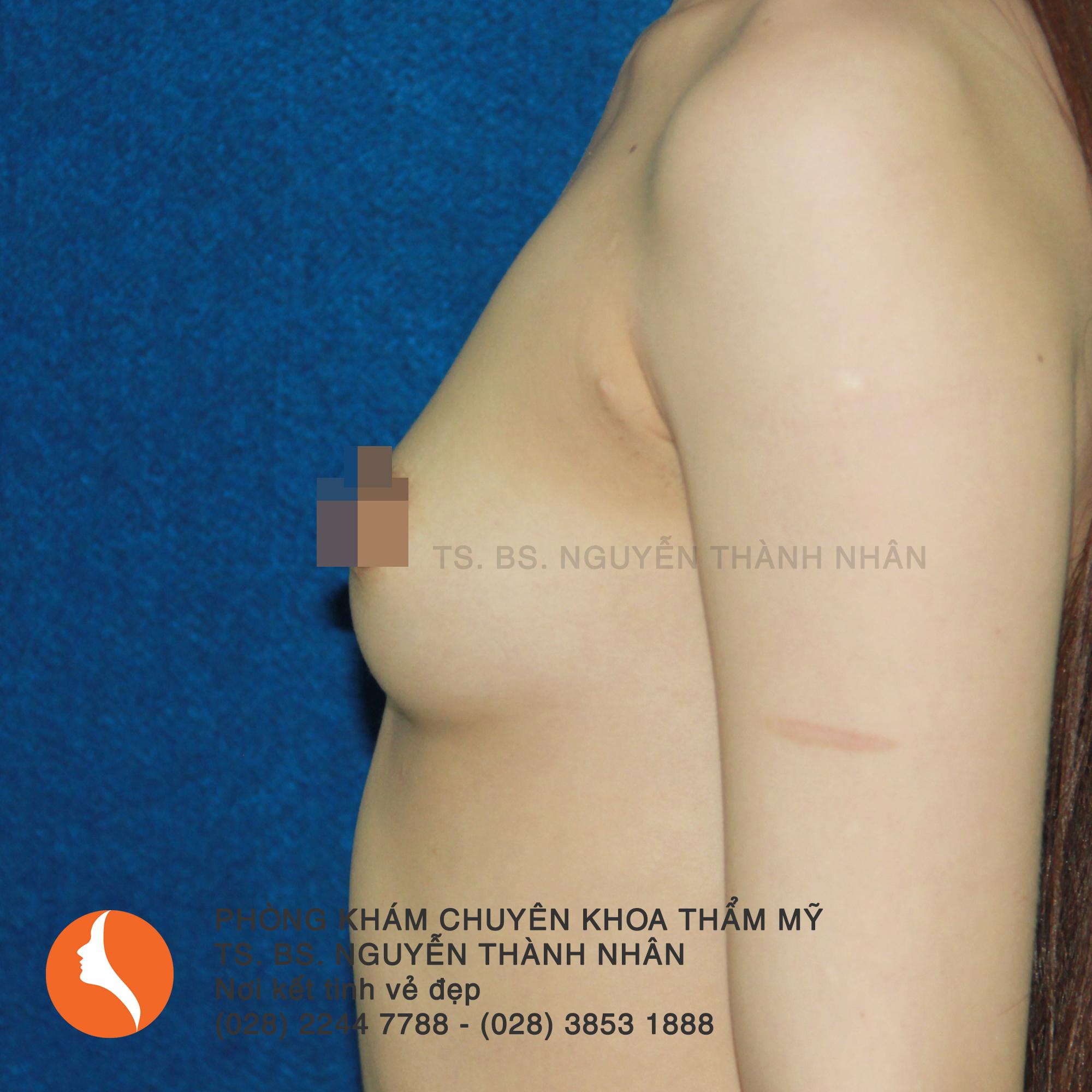 Ca 2: Trước phẫu thuật nâng ngực